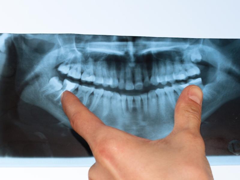 В какой стоматологии сделать снимок зуба в Волгограде?